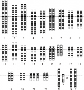 Down syndrome - notice the three copies of chromosome 21